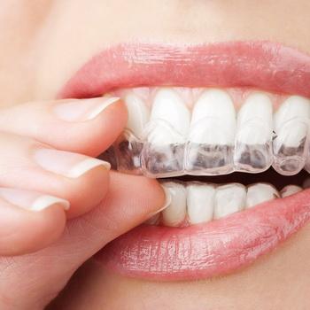 как на фото отбелить зубы