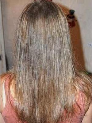 Новая технология лечение волос