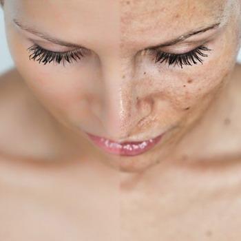 Отбеливающие маски для лица с лимоном и белком