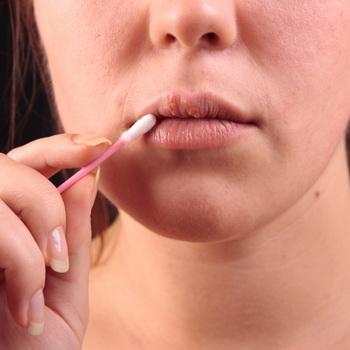 Быстрое лечение герпеса на губах | Народные средства