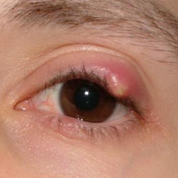 Снять воспаление на глазу в домашних условиях 172