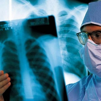 Туберкулез лечение народными средствами в домашних условиях 41